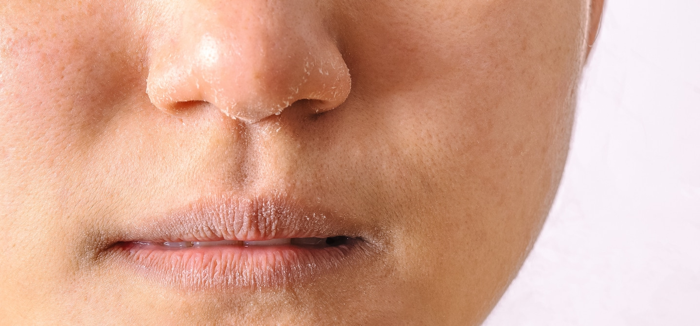 Close up shot of woman's tight face with dry skin flakes and dry lips