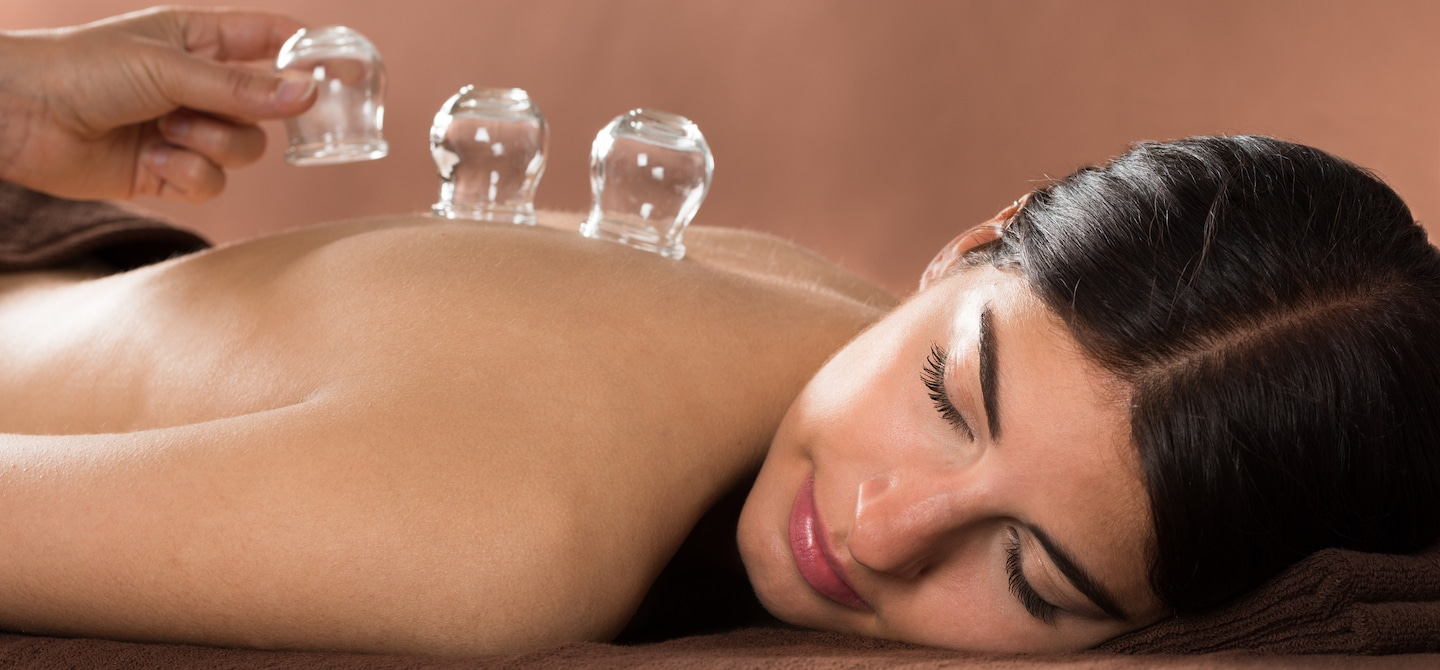 Woman laying down on her stomach with eyes closed, receiving a cupping treatment