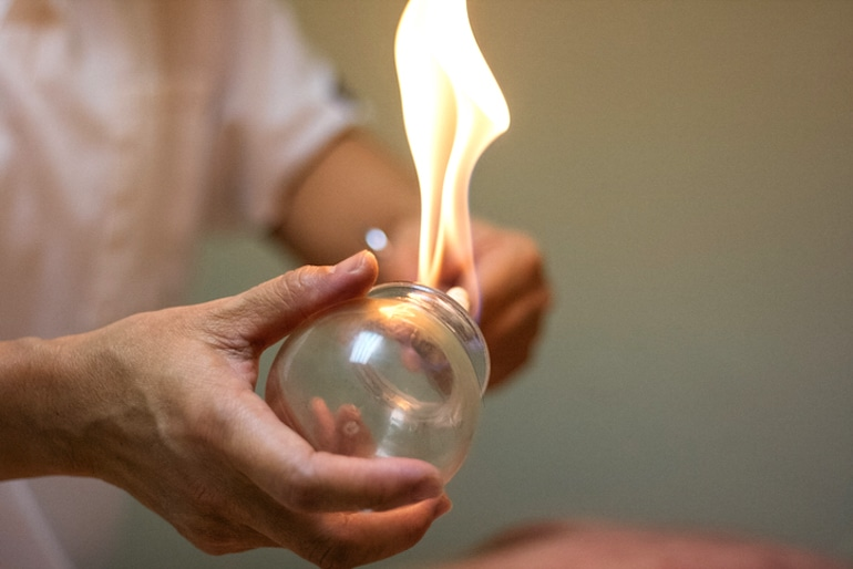 Chinese Medicine doctor using fire to prepare for cupping therapy treatment