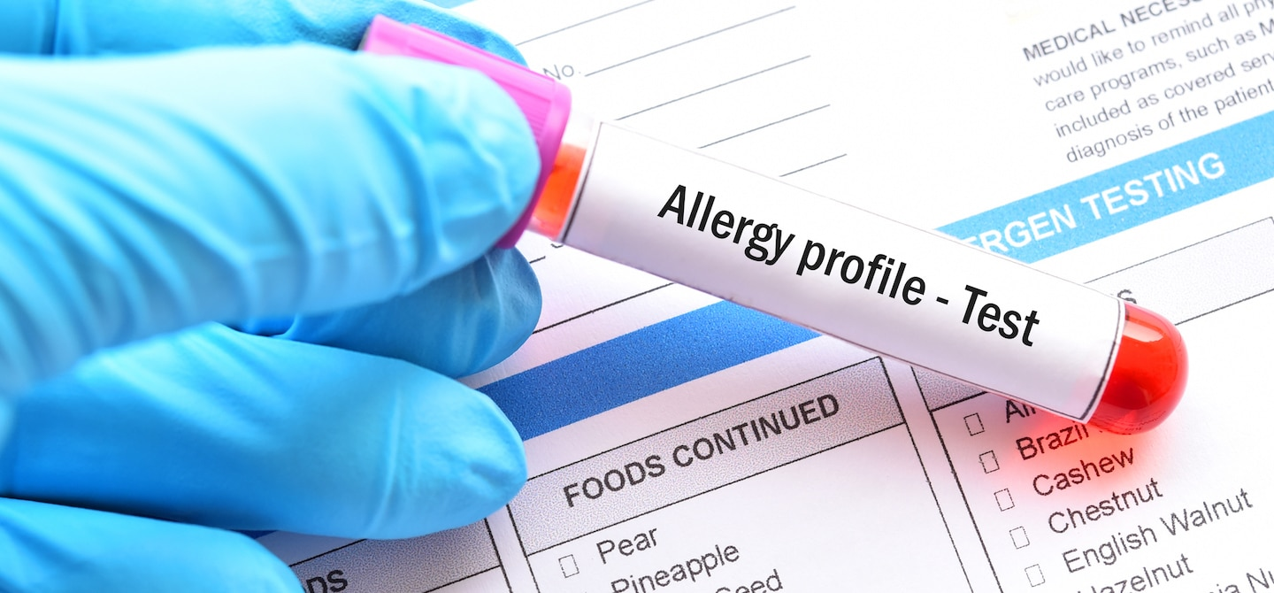 Vial for food sensitivity testing and allergy profile