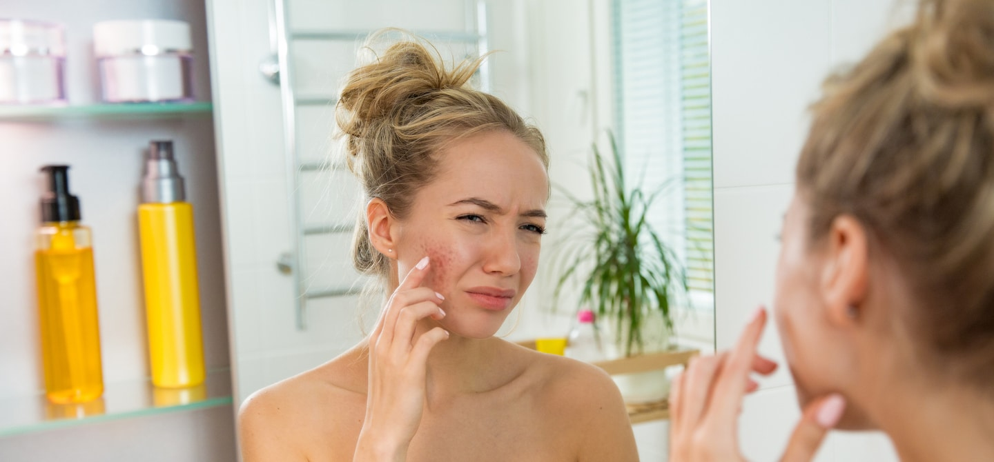 Woman looking in bathroom mirror upset about her cystic acne