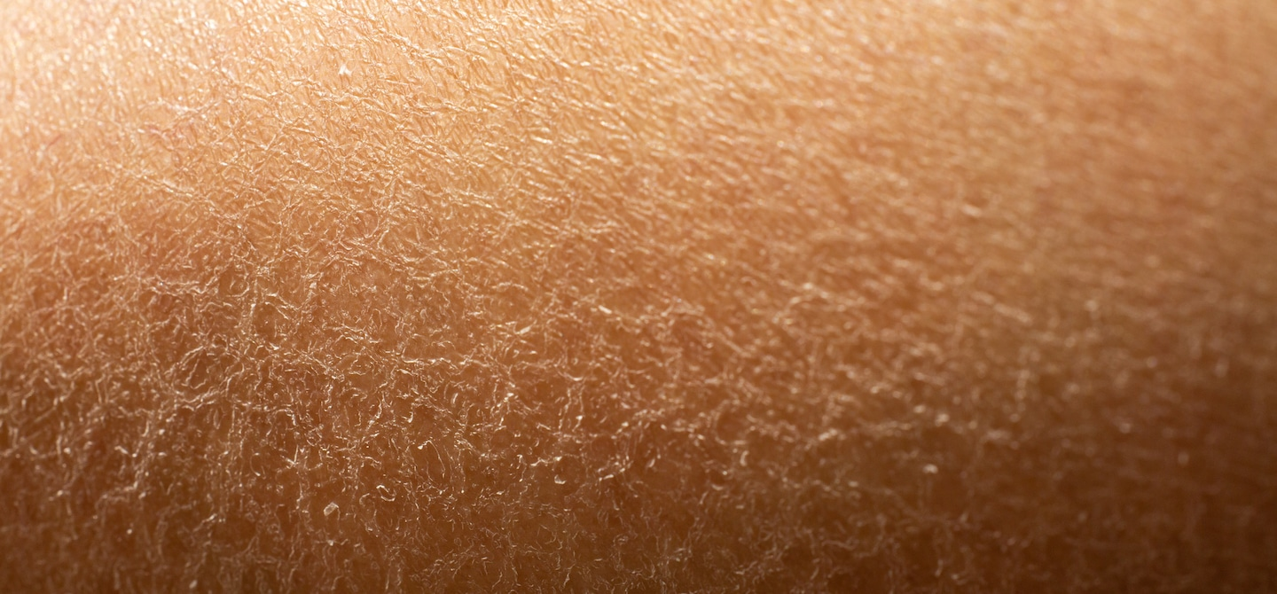 Close-up of dry skin that would benefit from a GLA fatty acid supplement