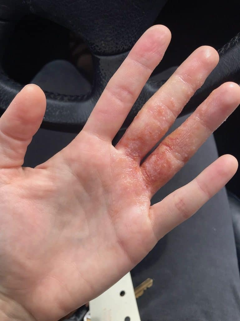 Dyshidrotic Eczema Photo | The Wellnest by HUM Nutrition