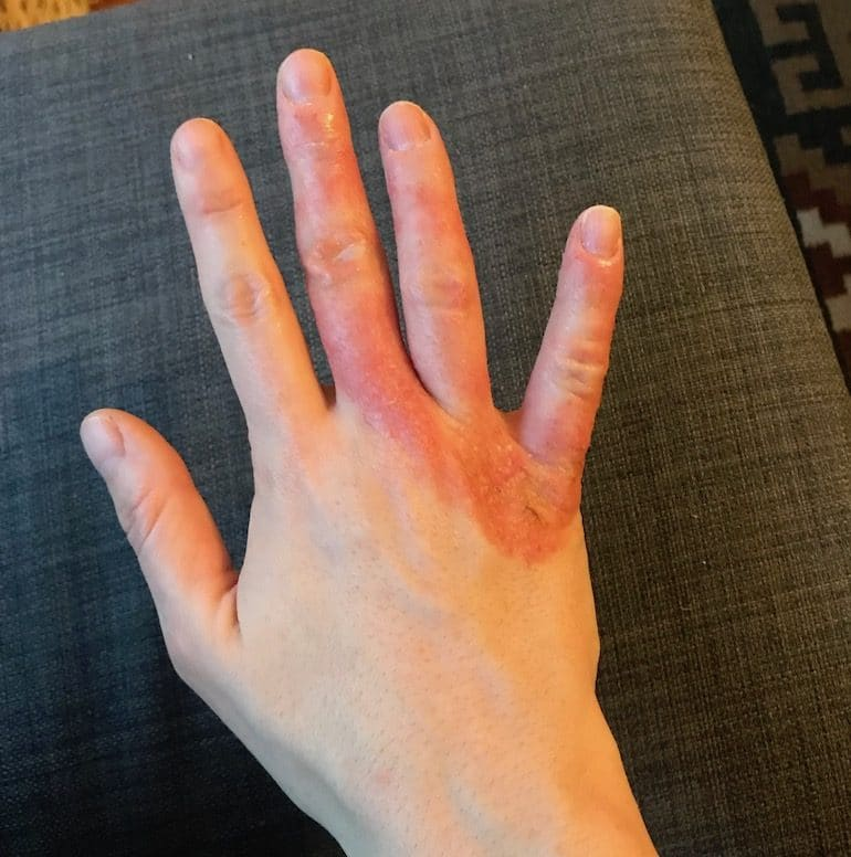 Red Inflamed Eczema on Hands | The Wellnest by HUM Nutrition