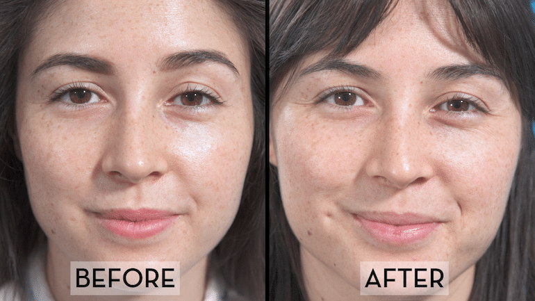 Skin Fasting Before & After