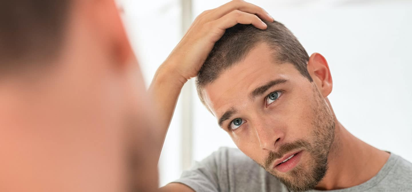 Young man touching hair in mirror concerned about men's hair loss and what causes it