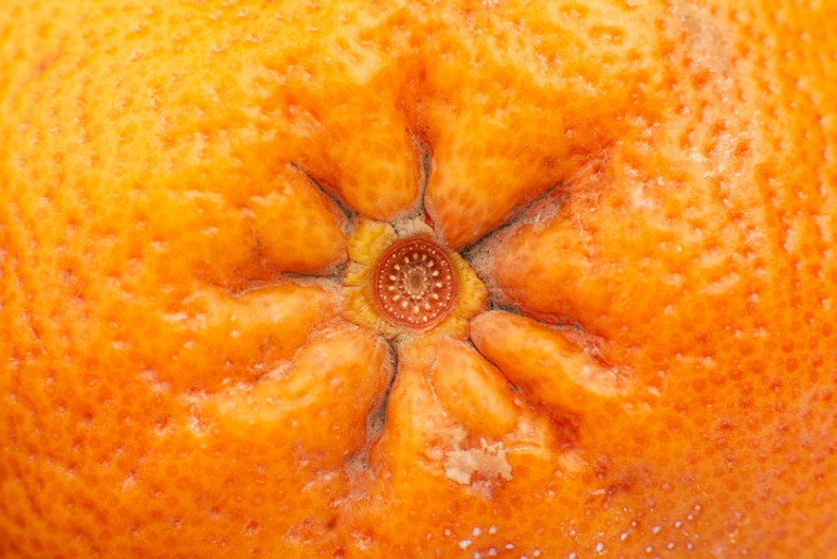 Hemorrhoid concept on the pit of an orange