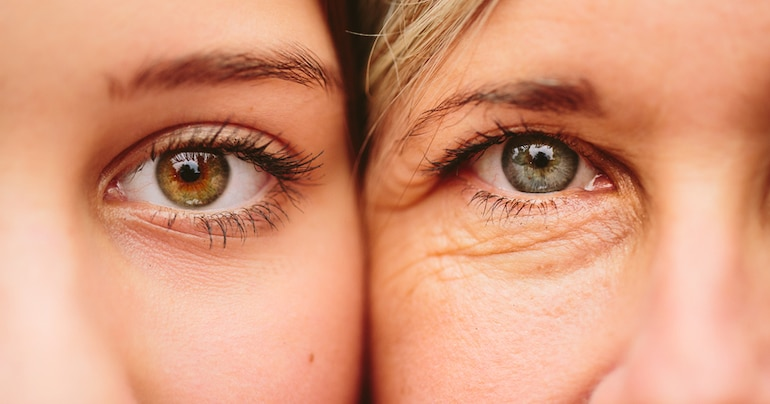 Close up of eyes of daughter and mother, illustrating that free radicals in skin can lead to premature aging and wrinkles
