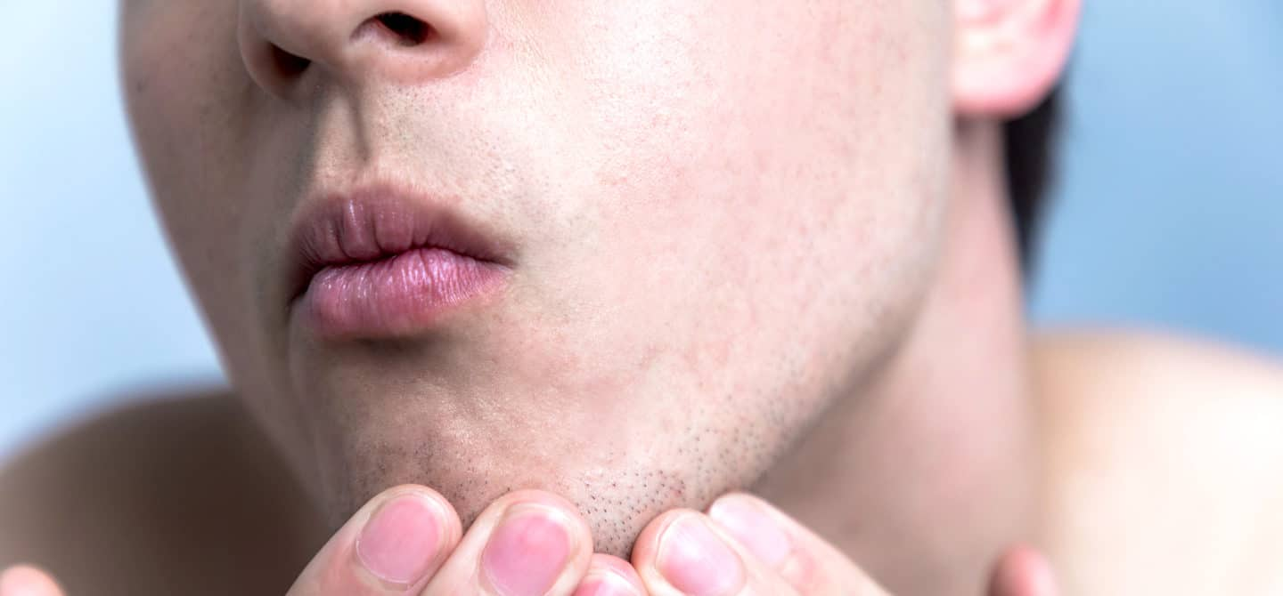 Closeup of man healing his face with the best ingredients for dry skin
