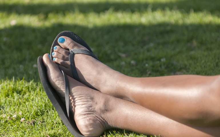 Close-up of woman in flip flops, which can cause dry feet to get worse
