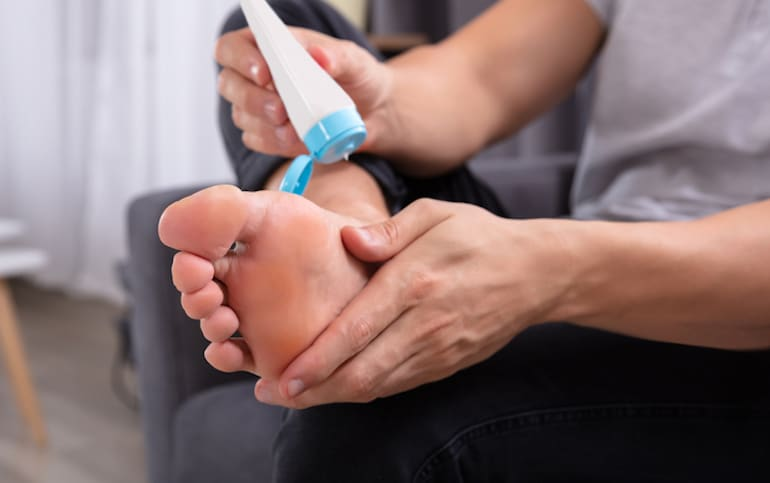 Man applying foot lotion to his dry feet