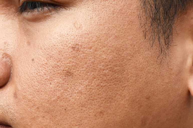 Close-up of tan man with clogged pores looking for the best ways how to treat acne scars