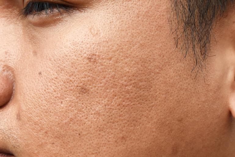 Primer plano de un hombre bronceado con poros obstruidos en busca de las mejores formas de tratar las cicatrices del acné