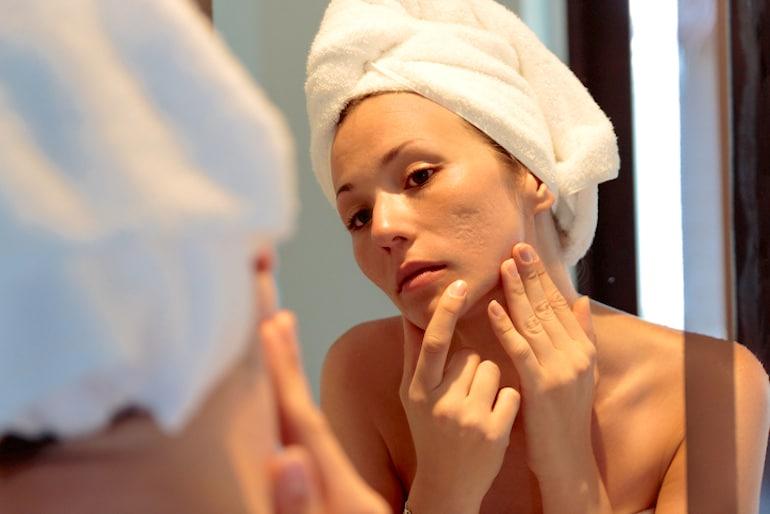 Mujer recién salida de la ducha investigando tipos de cicatrices de acné en su rostro