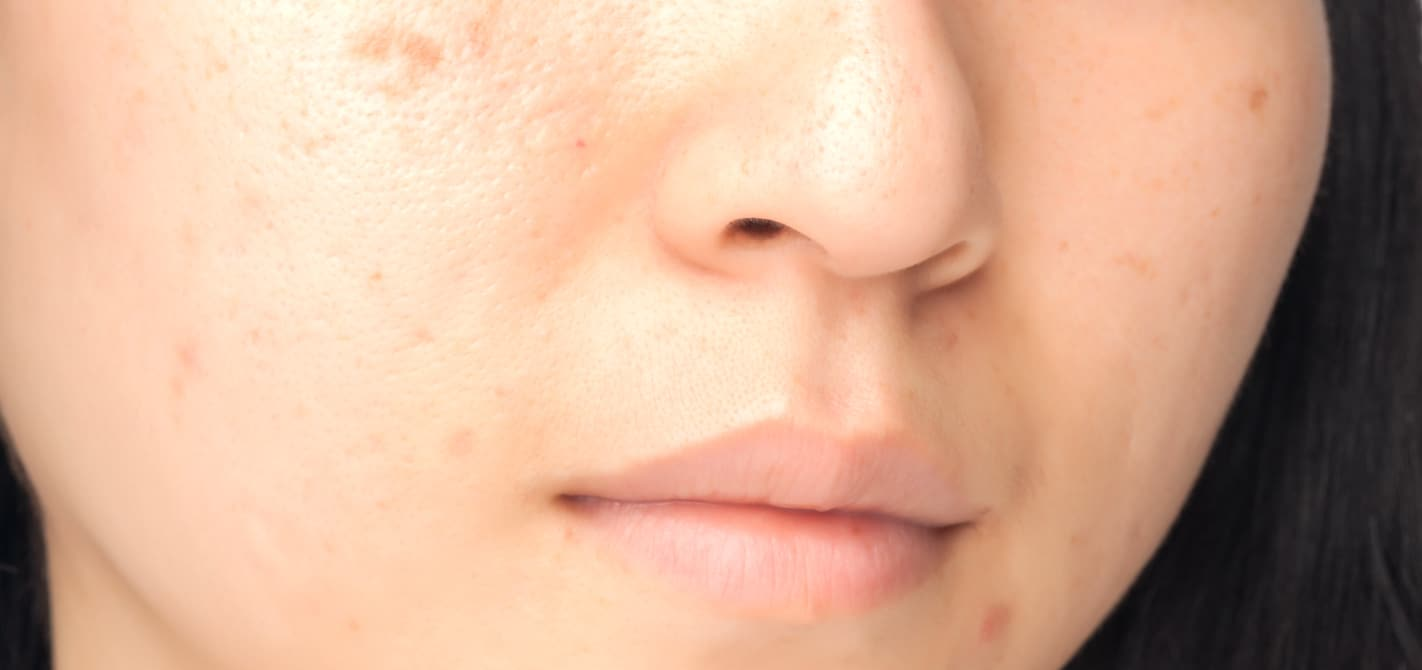 Close-up of woman with acne scars, trying to treat and heal them