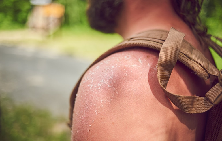Close up of man with peeling skin and sunburn