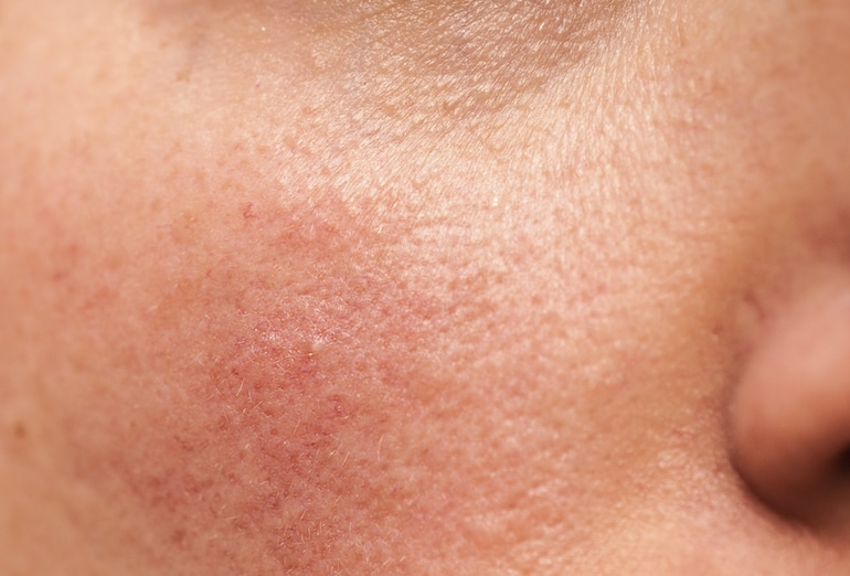 Closeup of person's skin with breakouts and inflammation before using probiotics