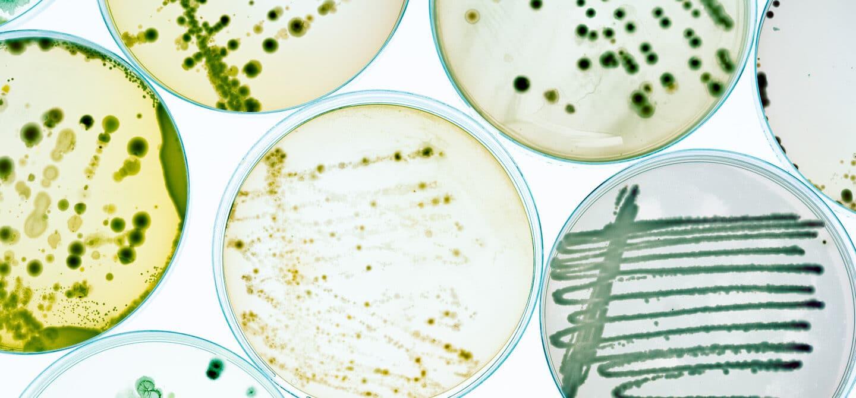 bacteria in petri dish